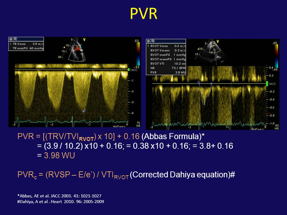PVR PVR = [(TRV/TVIRVOT) x 10] + 0.16 (Abbas Formula)*